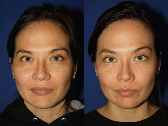 patient-1129-fractional-laser-before-after