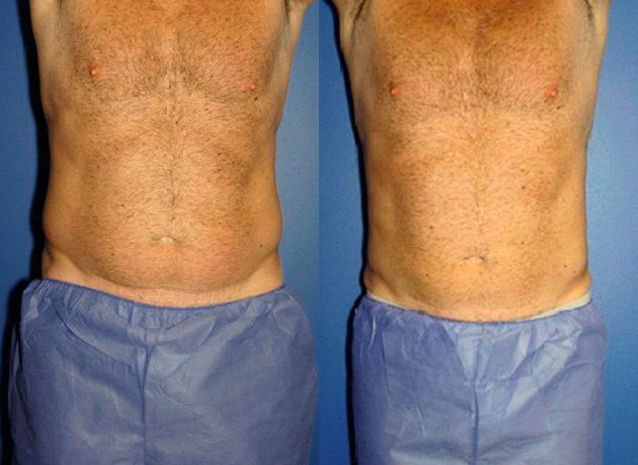 patient-1134-coolsculpting-before-after