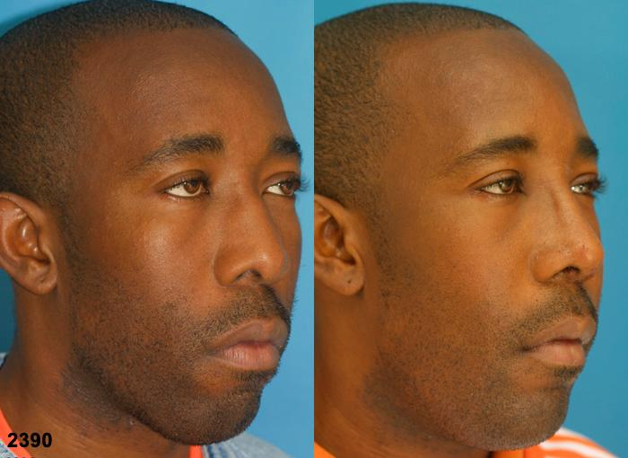 patient-1183-ethnic-rhinoplasty-before-after-4