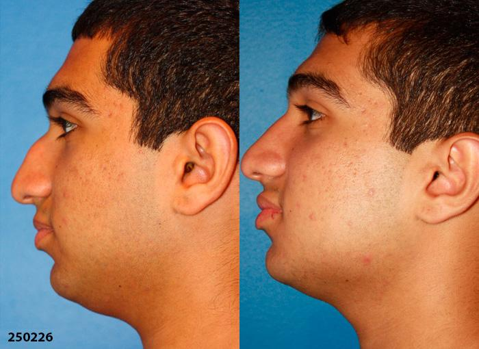 patient-1190-ethnic-rhinoplasty-before-after-1