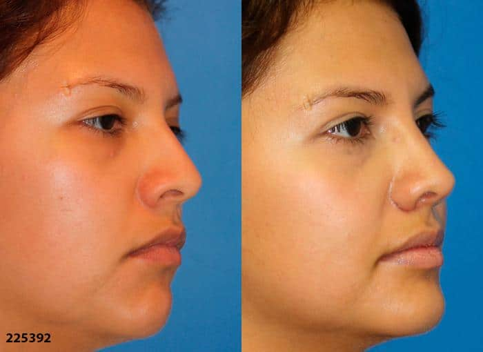 patient-1193-ethnic-rhinoplasty-before-after-2