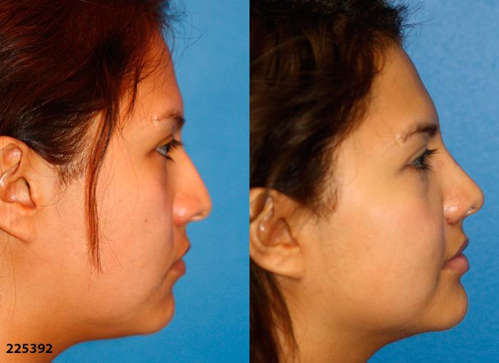 patient-1193-ethnic-rhinoplasty-before-after-3