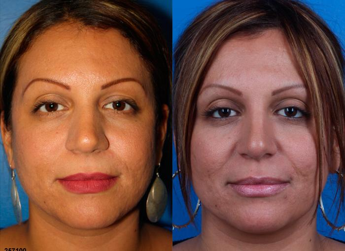 patient-1205-ethnic-rhinoplasty-before-after-5