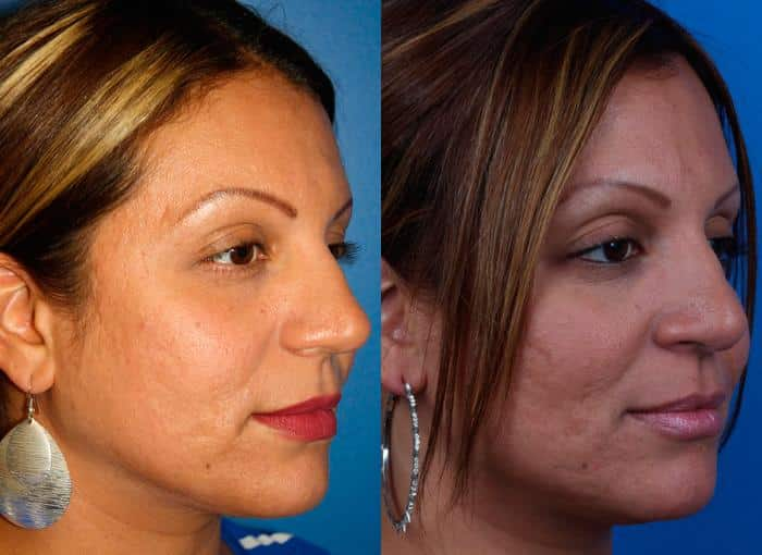 patient-1205-ethnic-rhinoplasty-before-after-6