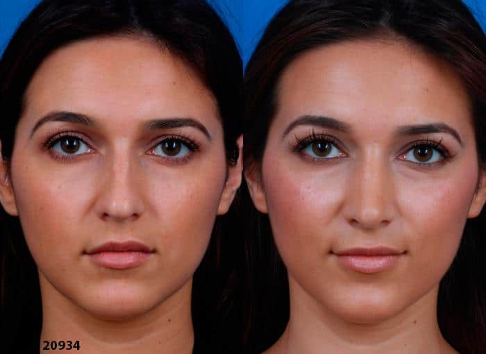 patient-1216-ethnic-rhinoplasty-before-after-5