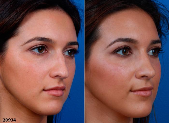 patient-1216-ethnic-rhinoplasty-before-after-6