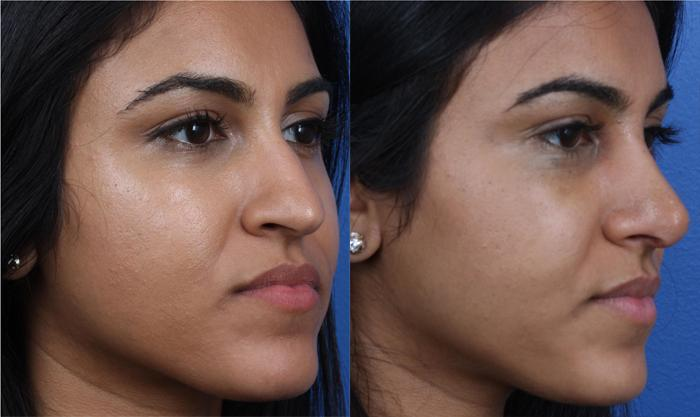 patient-1237-ethnic-rhinoplasty-before-after-1