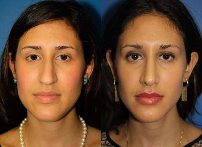 patient-1240-ethnic-rhinoplasty-before-after-3