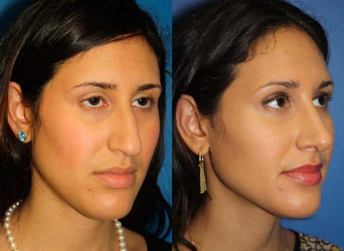 patient-1240-ethnic-rhinoplasty-before-after-4