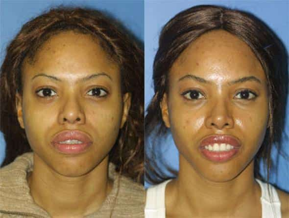 patient-1247-ethnic-rhinoplasty-before-after-4