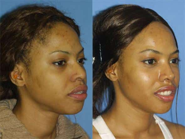 patient-1247-ethnic-rhinoplasty-before-after-5
