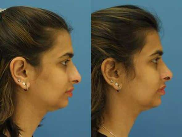 patient-1266-ethnic-rhinoplasty-before-after-1