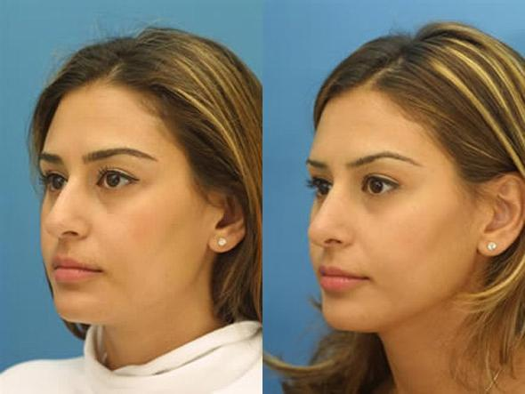 patient-1269-ethnic-rhinoplasty-before-after-4