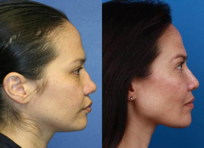 patient-1279-ethnic-rhinoplasty-before-after-2