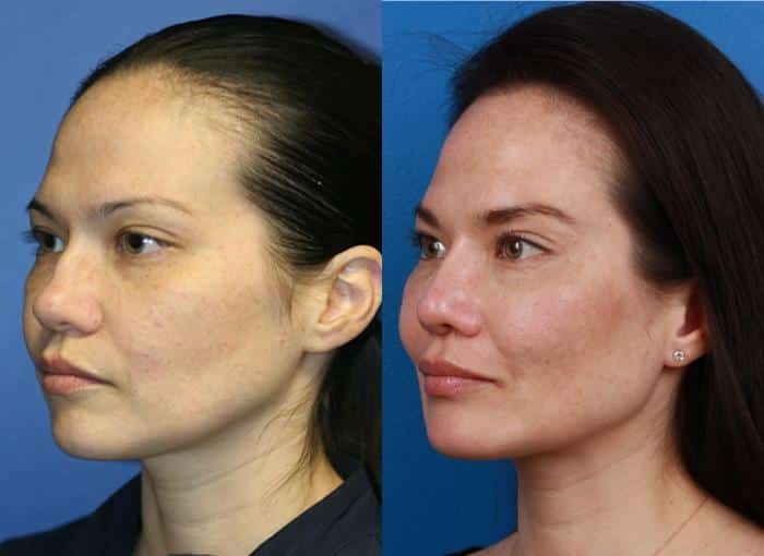 patient-1279-ethnic-rhinoplasty-before-after-3