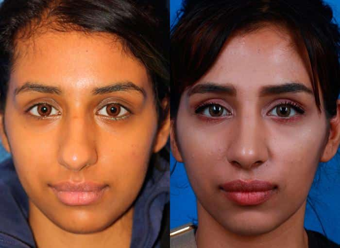 patient-1284-ethnic-rhinoplasty-before-after-3