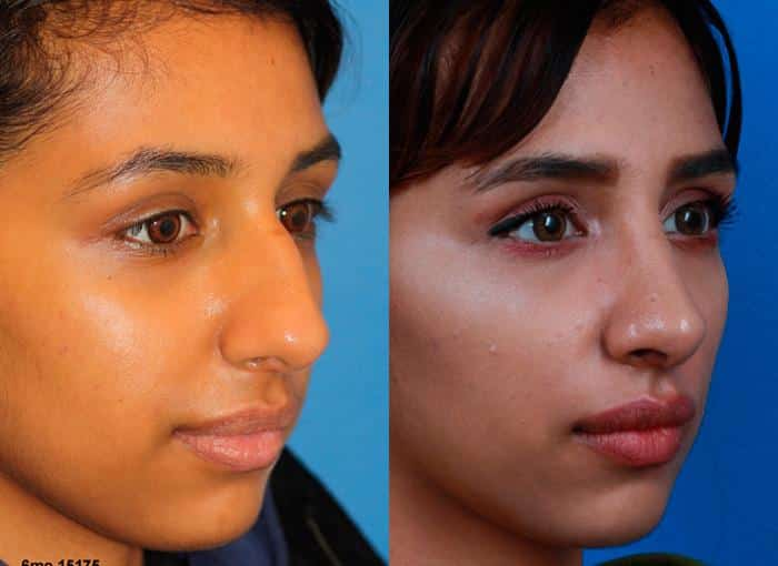 patient-1284-ethnic-rhinoplasty-before-after-4