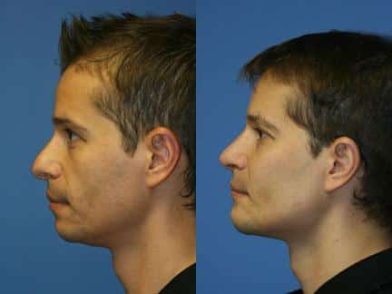 Cheek Implants Before After