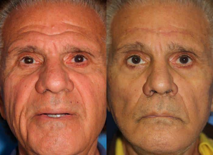 patient-1305-facelift-before-after