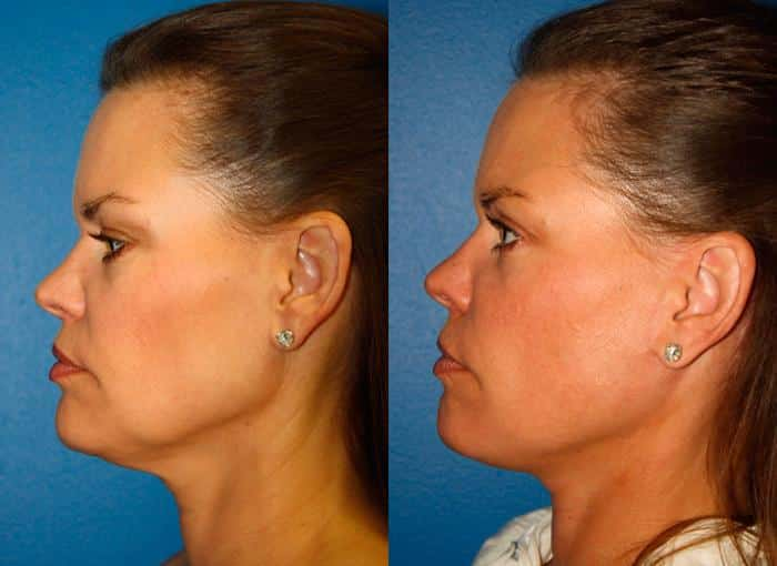 patient-1308-facelift-before-after-1