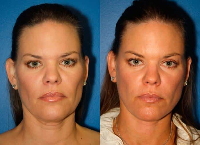 patient-1308-facelift-before-after
