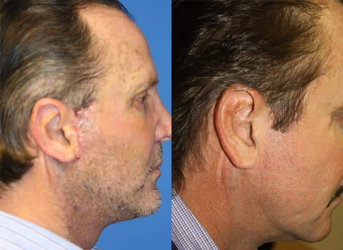 patient-1313-facelift-before-after