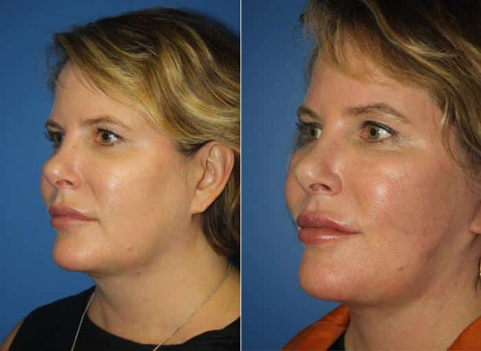 patient-1316-facelift-before-after-1