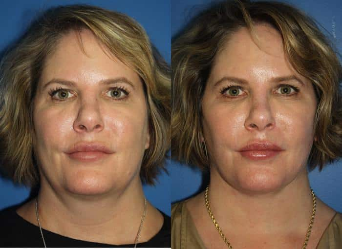 patient-1316-facelift-before-after