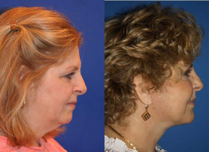 patient-1321-facelift-before-after-1