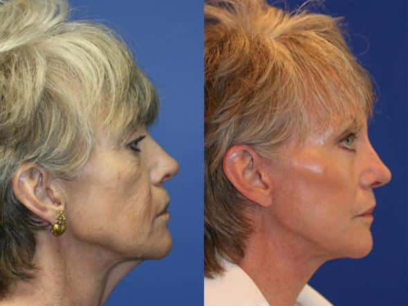 patient-1328-facelift-before-after-1