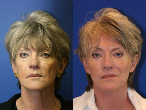 patient-1328-facelift-before-after