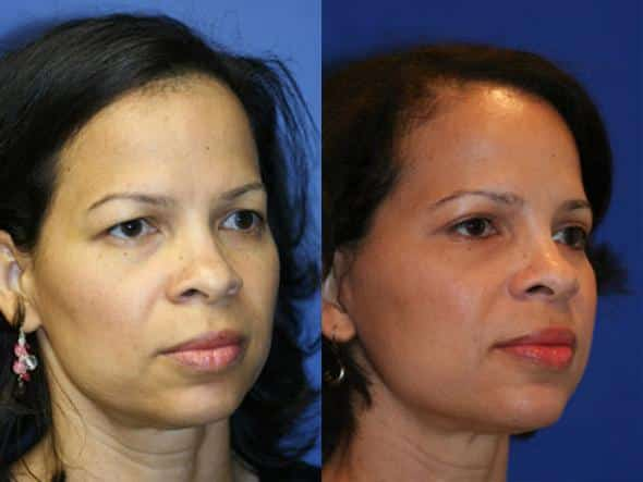 patient-1337-facelift-before-after-1