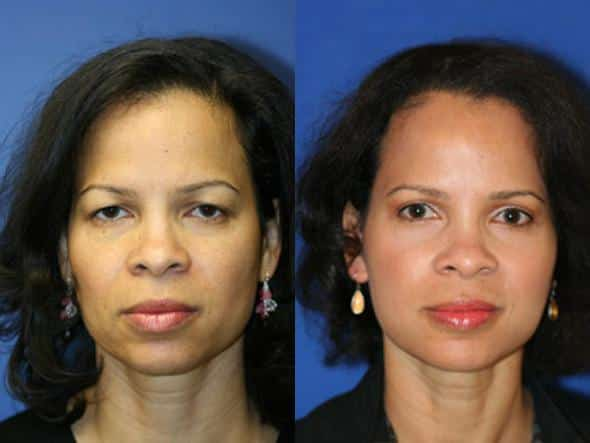 patient-1337-facelift-before-after