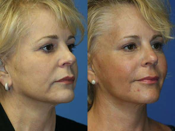 patient-1344-facelift-before-after