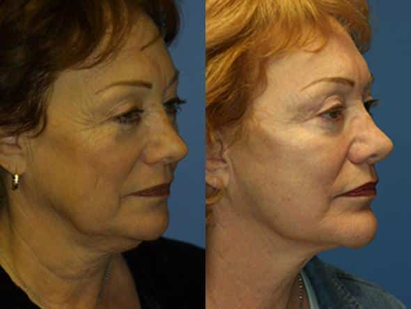 patient-1347-facelift-before-after-1