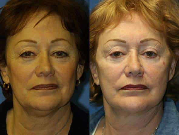 patient-1347-facelift-before-after