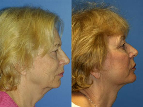patient-1354-facelift-before-after-1