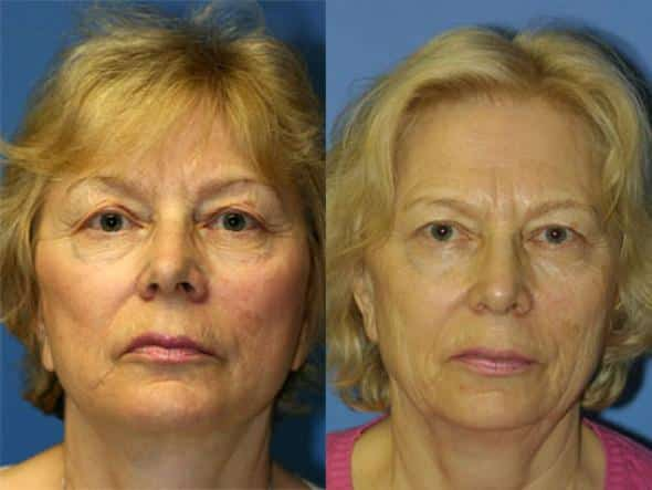 patient-1354-facelift-before-after