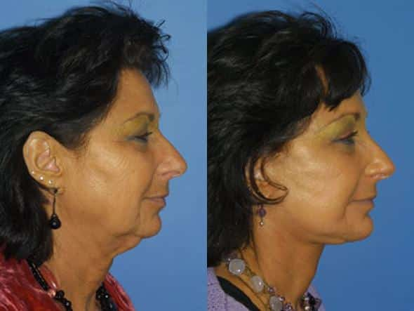 patient-1367-facelift-before-after-1