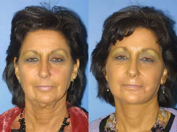 patient-1367-facelift-before-after