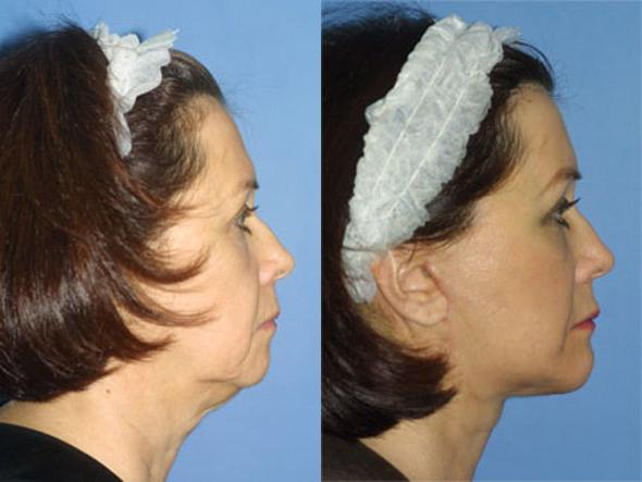 patient-1372-facelift-before-after-1