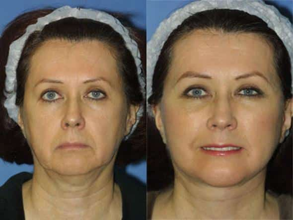 patient-1372-facelift-before-after