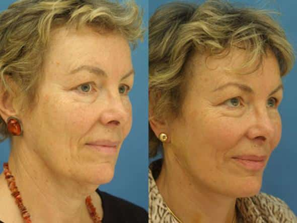 patient-1379-facelift-before-after-1