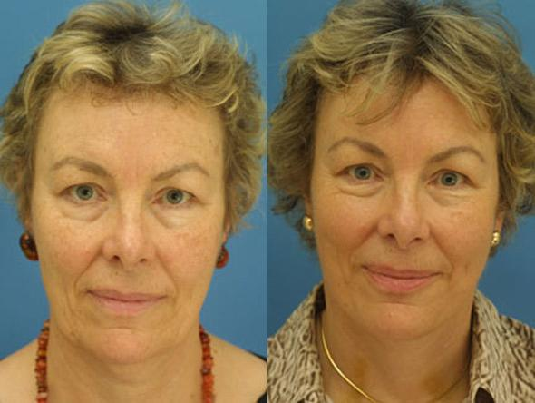 patient-1379-facelift-before-after
