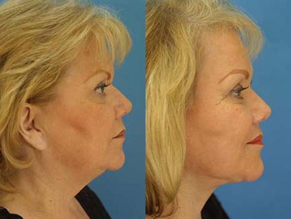 patient-1386-facelift-before-after
