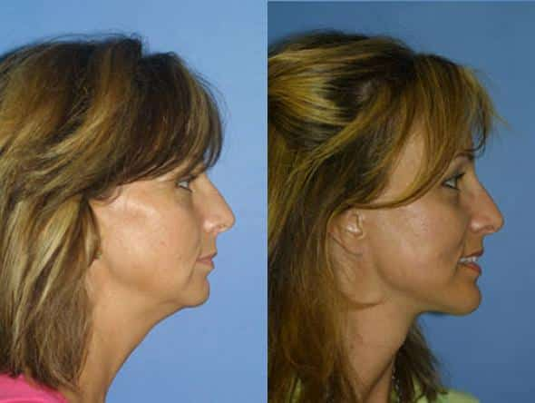 patient-1389-facelift-before-after-1