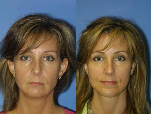 patient-1389-facelift-before-after