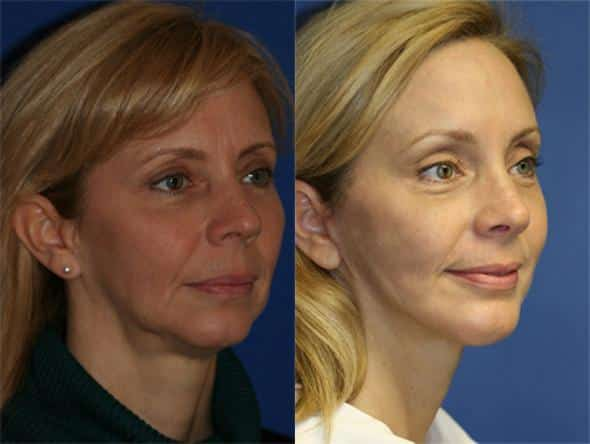 patient-1396-facelift-before-after-1