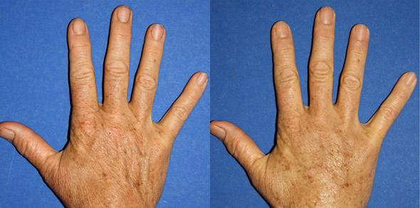 Procedure on body and hand rejuvenation
