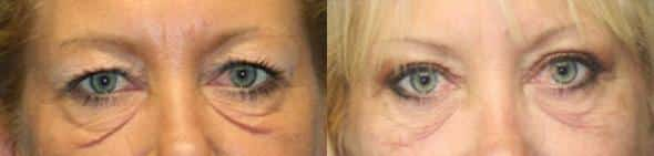 patient-1425-laser-treatments-before-after